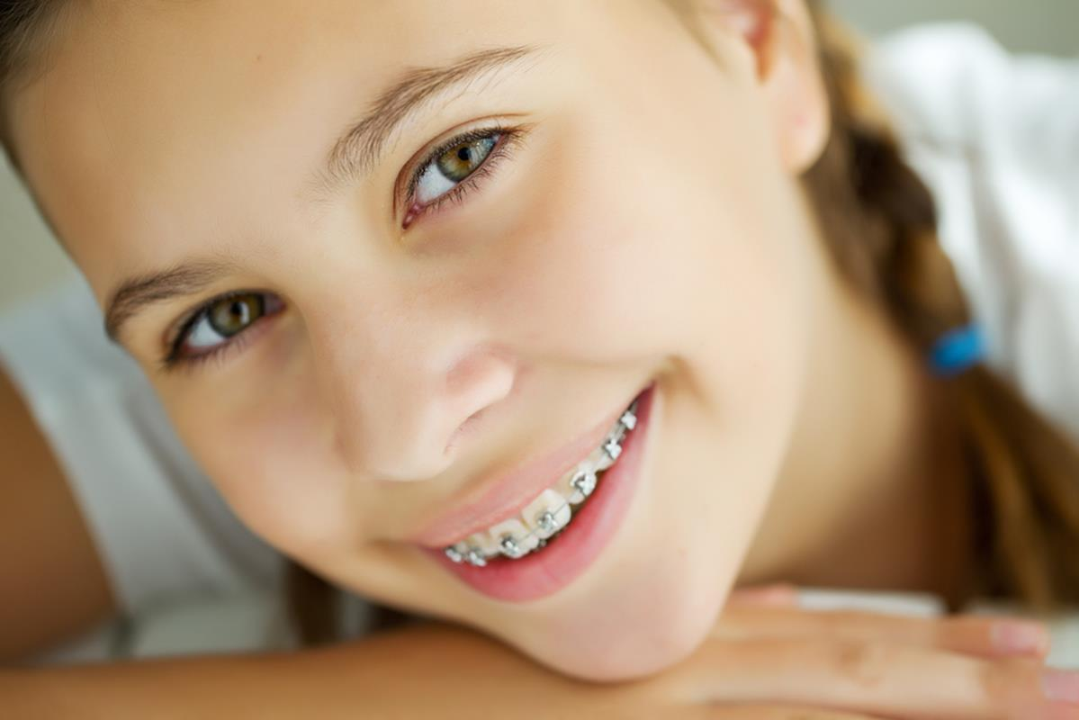 orthodontic services San Diego, CA